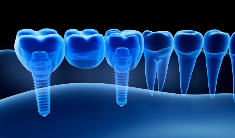 Erstatt hele, eller halve munnen med tannimplantater. Rimelige priser, garanti og vi bistår med Helfo-refusjon. Les mer om tannimplantat her.