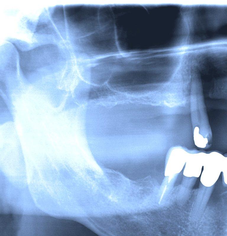 Røntgenbilde sinusløft