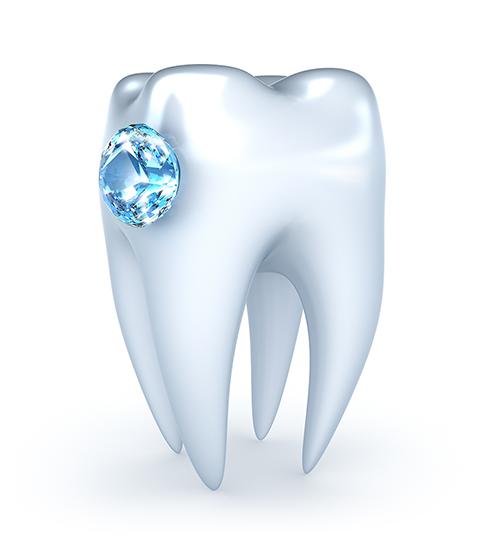Smykke på tann