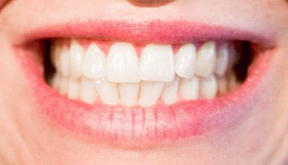 Hva koster tannregulering for voksne?