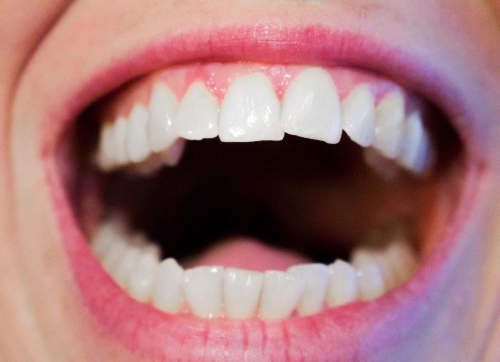 Blekede tenner åpen munn