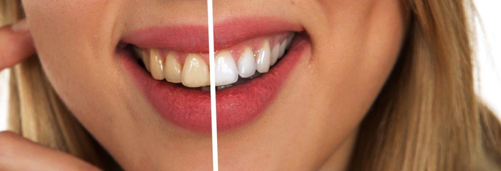 Tannbleking sammenligning