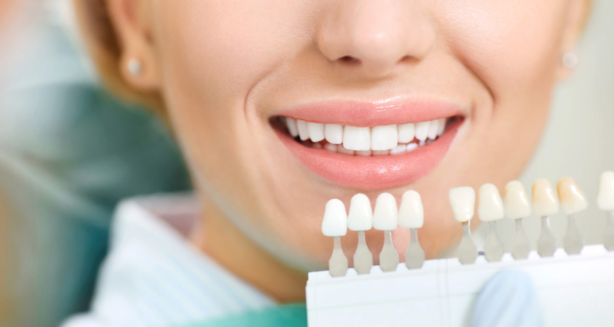 Blek tennene hjemme