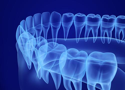 Grafikk av tannregulering blått