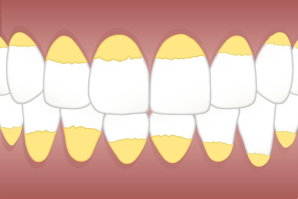 Tannstein kan føre til hull i tennene