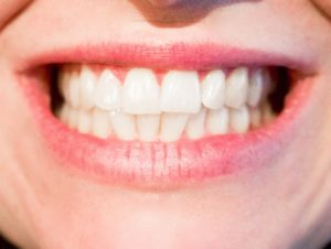 Estetisk tannbehandling i Oslo.