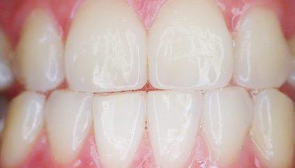 Det er aldri for sent å få tannregulering